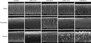 hair microscopy keratin