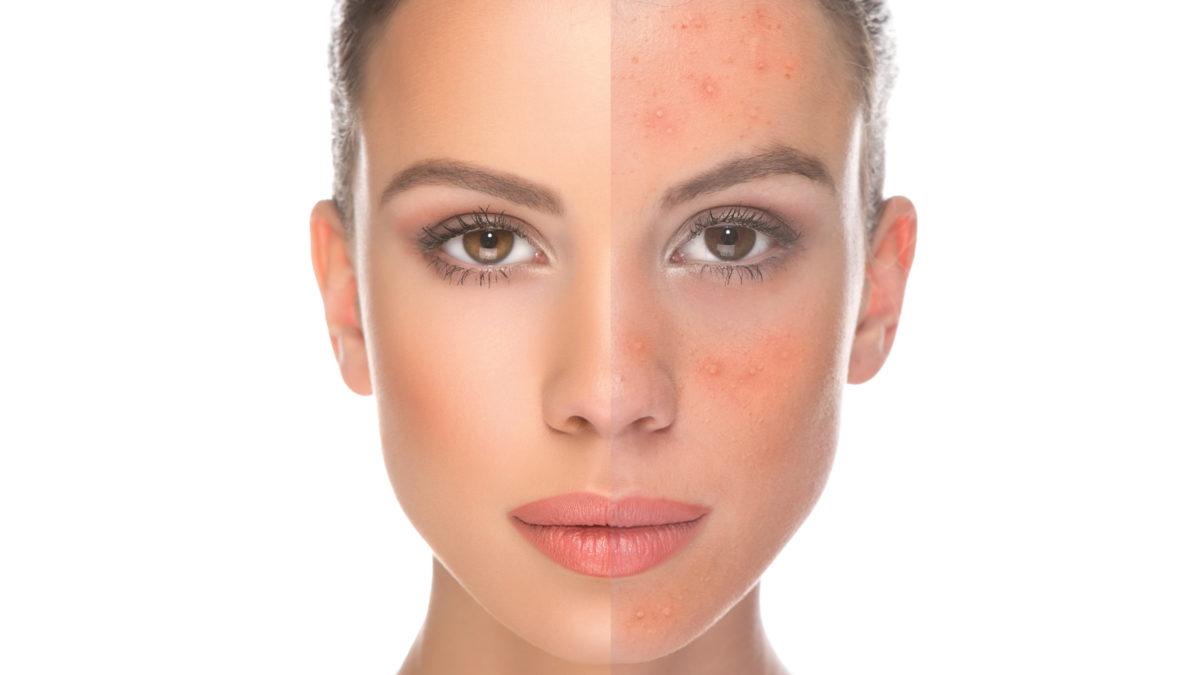 acne cure organic
