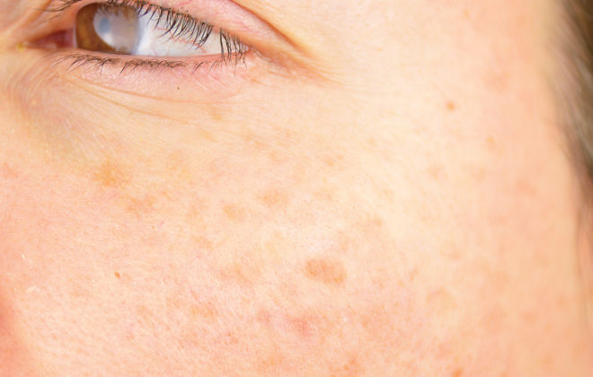 age spots natural removal