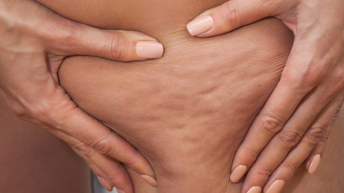 natural cellulite reduction
